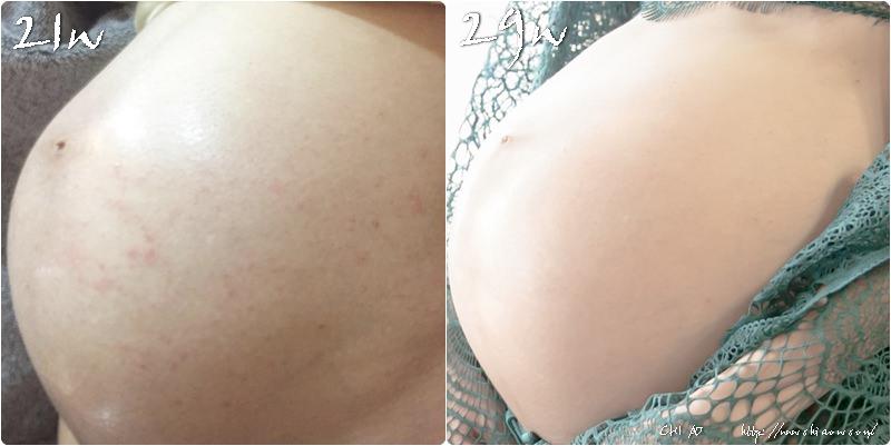 皮膚比較1